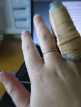 Here is my clunky, no-good-for-typing finger splint, but at least, my family had something to use!